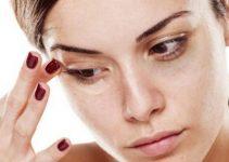 get-rid-of-bags-under-eyes-780x439-768x432