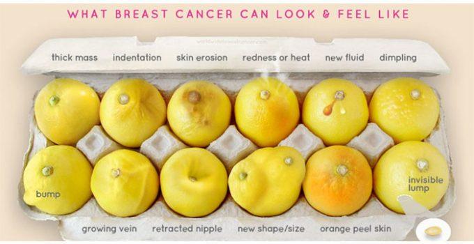 forme-limon-kancer-gjirit-ndihmon