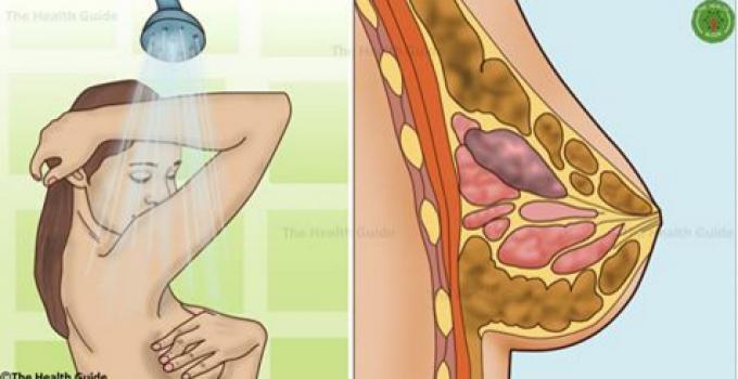 simptoma kanceri