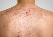 Acne, scars and keloids in the back of a young man, isolated on gray background. High definition image